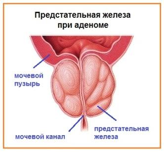 Аденома предстательной железы симптомы