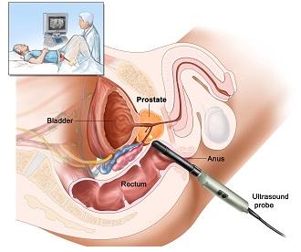 Как делать клизмы на ромашке от простатита