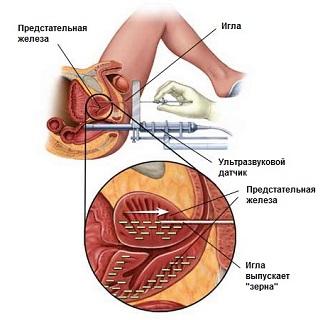 Анализ секрета предстательной железы для чего