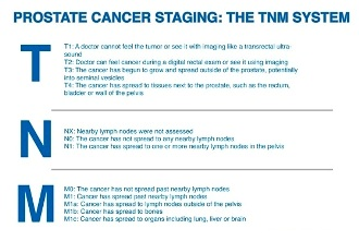 Лечение РПЖ на поздних стадиях tnm