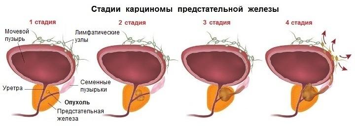 Рак предстательной железы 3 стадия прогноз
